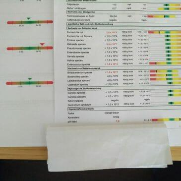 Krónikus ízületi gyulladás vizsgálata