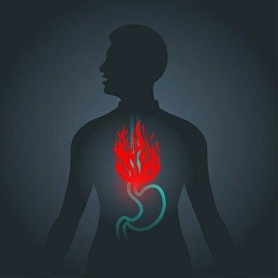"""Inzulinrezisztencia és """"reflux"""" összefüggései"""