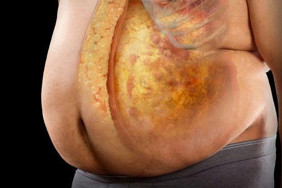 Testsúly és elhízás, az ördögi kör