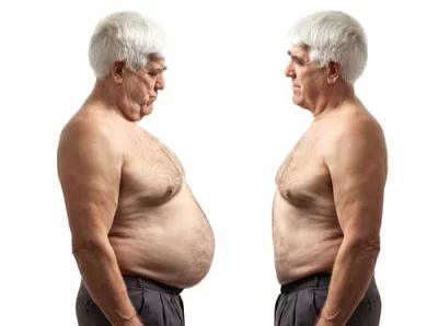 Inzulinrezisztencia (IR) és öregedés